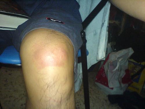 Left knee
