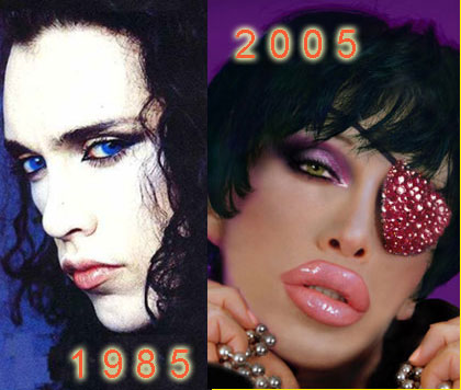 pete_burns_total_freak