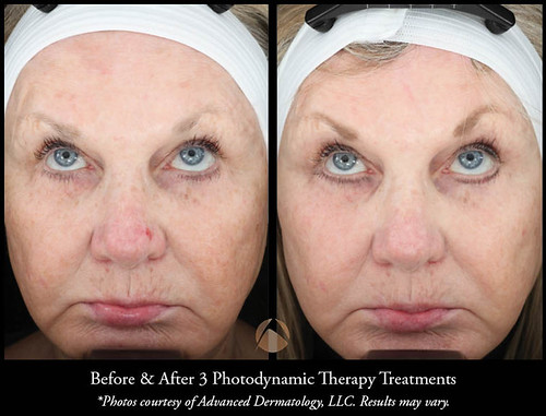 Photodynamic Therapy Levulan Chicago Il Advanced