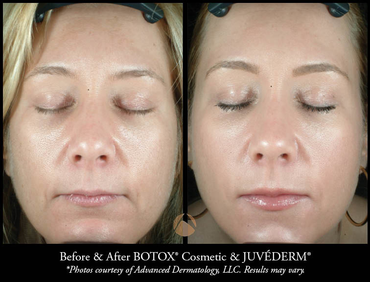 Cosmetic Botox Injections & Treatments – Chicago, IL   Advanced