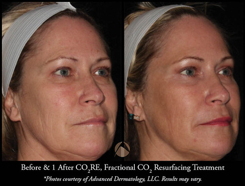 Fractional Co2 Laser Resurfacing Chicago Il Advanced Dermatology