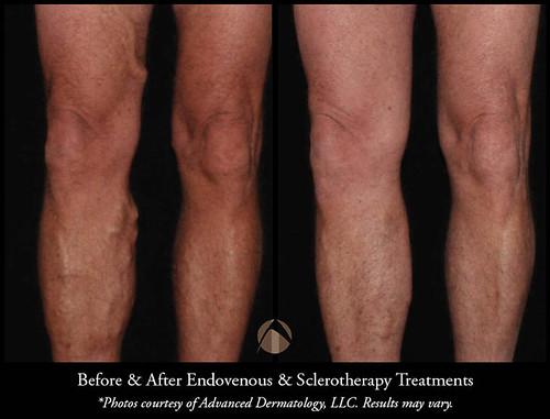 Laser Leg Vein Removal Treatments Chicago Il Advanced Dermatology