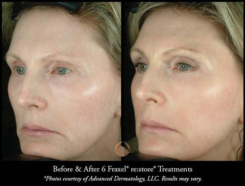 Fraxel 174 Advanced Dermatology