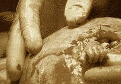 foto della manina tenuta dal chirurgo