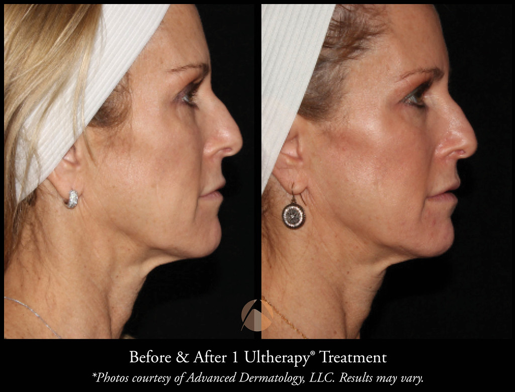 Double Chin Removal & Neck Tightening Procedures | Advanced Dermatology