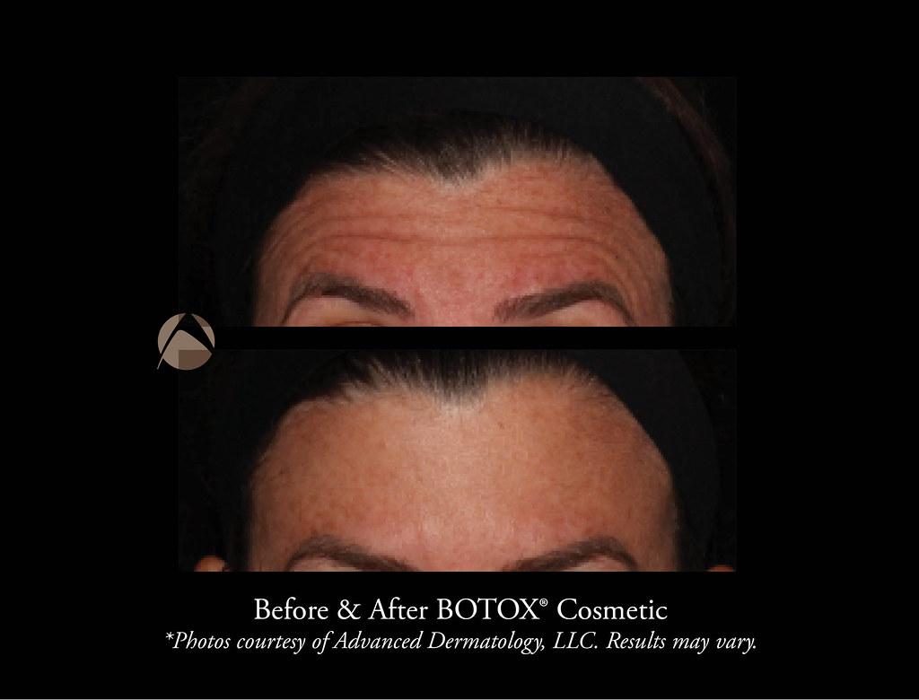 Bulging Forehead Vein After Botox