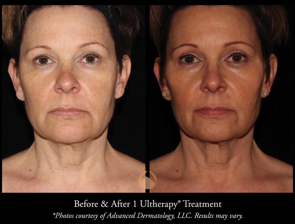 Ultherapy Skin Tightening Procedure - Chicago, IL | Advanced Dermatology