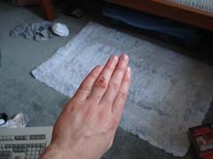 bleeding-hand
