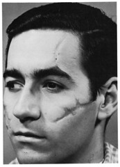 Dick Smith's Collodion Scars