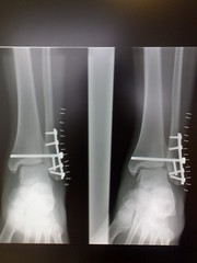 my ankle is screwed