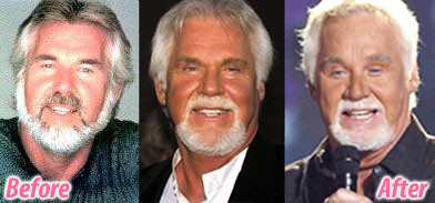More Kenny Rogers pictures showing the affect of various cosmetic surgery procedures (image hosted by flickr.com)