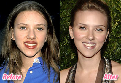 GoingPlastic.com: Scarlett Johansson - Her New Nose And Cheeks