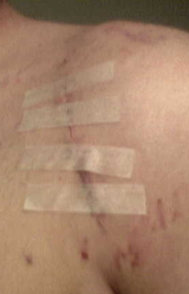 Incision scar after stitches removed