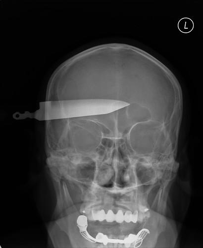 Knife in Head