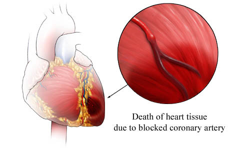 heart attack symptoms. A heart attack is a medical