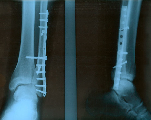 x-ray of ankle at lower leg