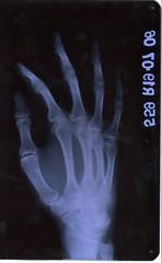 Right Hand X-Ray, Oblique