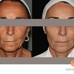 Before & After Sublime and Sublative eMatrix (etwo) Treatments