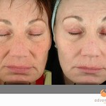 Before & After 3 Photodynamic Therapy with Levulan® for Sun Damage