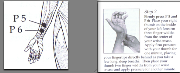 acupressure for nausia 2