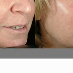 Before & After 1 Thermage Treatment