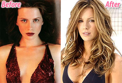 Kate Beckinsale before & after photos (image hosted by flickr.com)