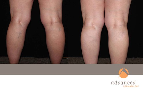 Crema e unguento di gamba da varicosity