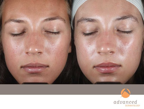 face peel for acne scars