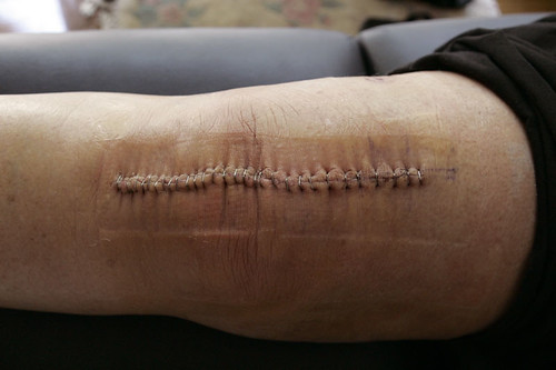 Knee Replacement Surgery Scar Tissue http://www.flickr.com/photos/gentletrouble/274978556/