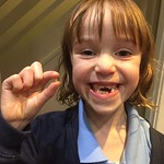 Tooth fairy required.<br/>21 Nov 2016
