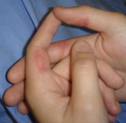 blåsor på fingertopparna