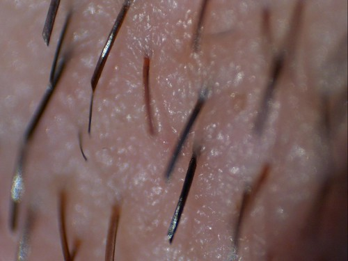 Pelos de la barba