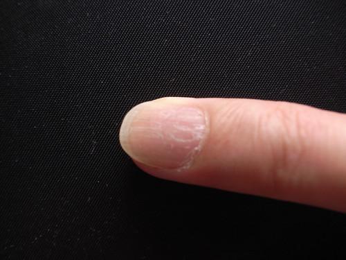 My ring finger