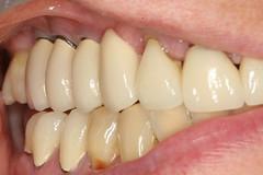 Restoration of Dental Implants