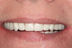 Complete Dentures