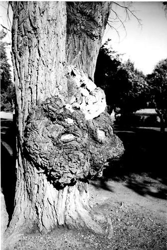 tree goiter