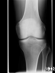 x-ray knee #1