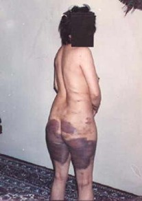 کلیپ سکس با زن حامله http://farsiposts.blogspot.com/2007/04/badly-beaten-woman-prisoner.html