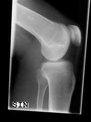 x-ray knee #2