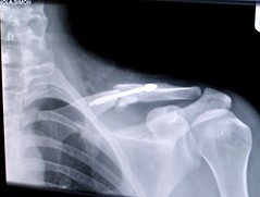 my broken clavicle - after