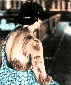 atomic bomb victim