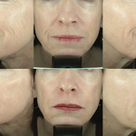 Liquid Facelift - Patient from Dr. Taub's study.