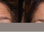 Before & After BOTOX® Cosmetic