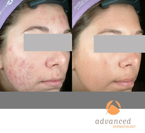 Photodynamic Therapy For Acne Pdt Chicago Il