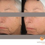 Before & After 5 Photorejuvenation Treatments