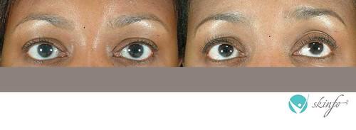 Latisse Consultations - Latisse for eyelash growth ...