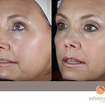 Before & After 5 eMatrix Complete Sublative Treatments Rejuvenation