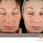 Before & After 3 Photorejuvenation Treatments