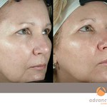 Before & After 3 eMatrix Treatments