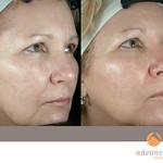 Before & After 3 eMatrix Treatments